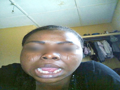 battered nysc corper