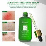 Acne Traitement Sérum pour la peau acnéique – Arbre à Thé – Peau grasse à tendance acnéiques – réduisant points noirs et boutons Équilibre d'huile de suppression