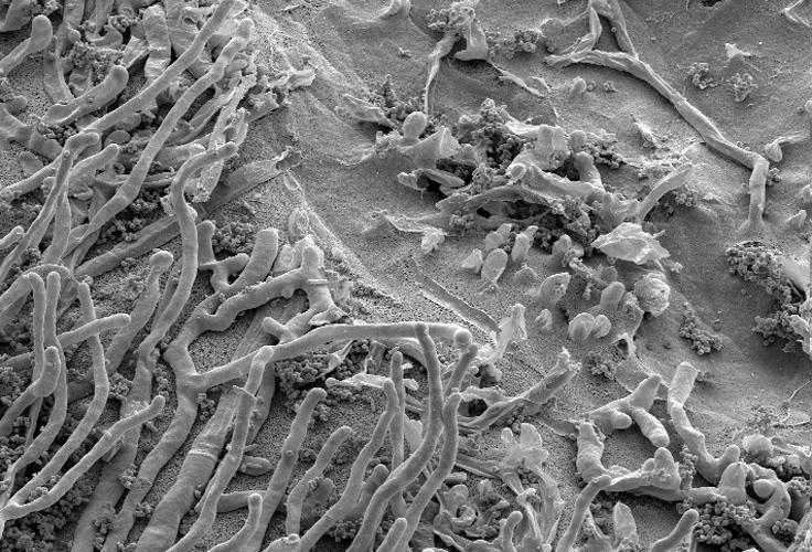 micro-sem-fungus-on-plastic2