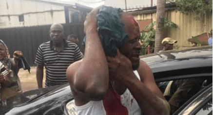 Ward chairman and others beaten up in Lagos as APC primary election turns bloody – See Photos
