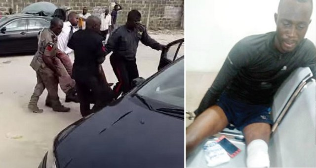 Policeman breaks electricity worker's leg for disconnecting former IGP's house.