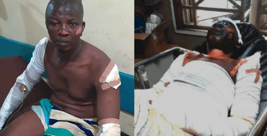 Lagos tanker explosion: It was like war – Survivors narrates his experience