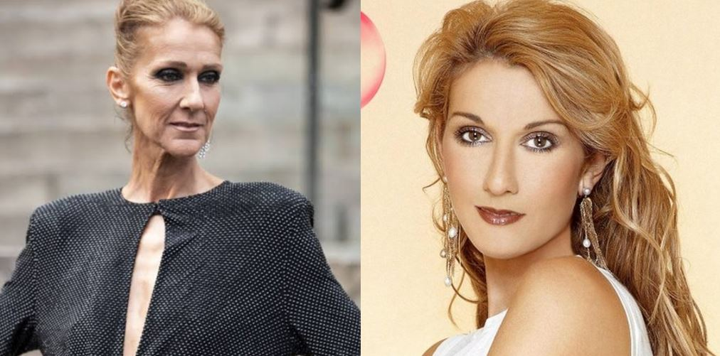 Photos Of How Celine Dion looks Now, Unbelievable Transformation