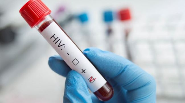 HIV Infected blood
