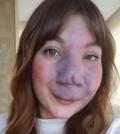 deformidade no rosto