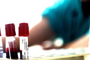 Coronavirus, in Sicilia impennata di contagi: 179 i nuovi positivi di oggi
