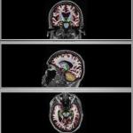 brain segmentation