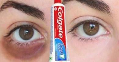 Occhiaie: Come rimuovere le occhiaie naturalmente in 3 GIORNI