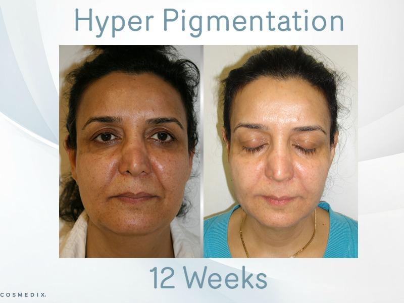 Medico Beauty Advanced Skin Results