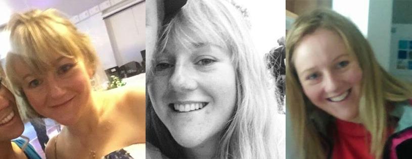 Rosacea after images Lara
