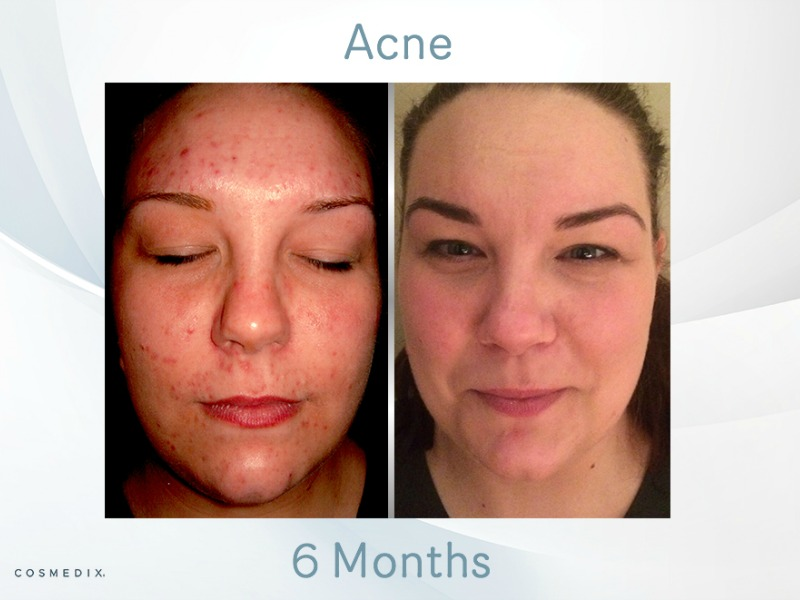 Adult Acne and IBS – Transformation Tuesday
