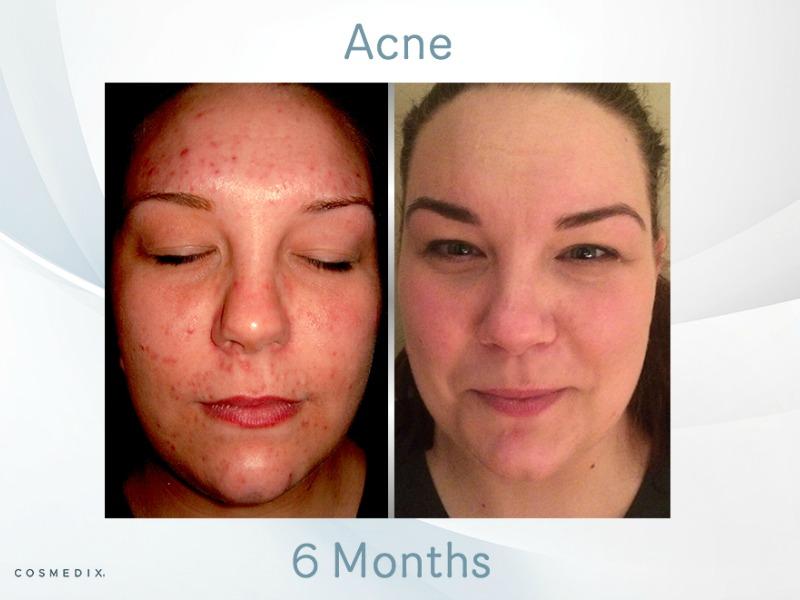 dehydrated skin acne