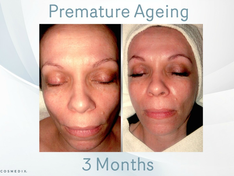 Premature ageing – Transformation Tuesday