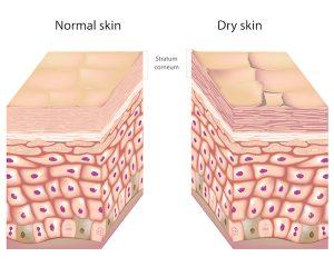 Normal Vs Drya Skin