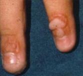 Wart treatment toronto Bacterii fosa septica dedeman