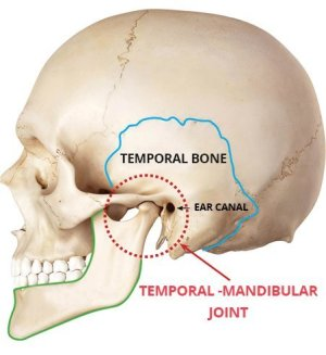 TMJ  Temporomandibular Joint  What Is TMJ and How Can It Be Treated?
