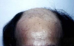 Orange County Hair Transplant Surgery 1