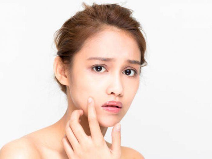 Produk Skincare Tanpa Izin BPOM, Sebabkan Iritasi sampai Kanker