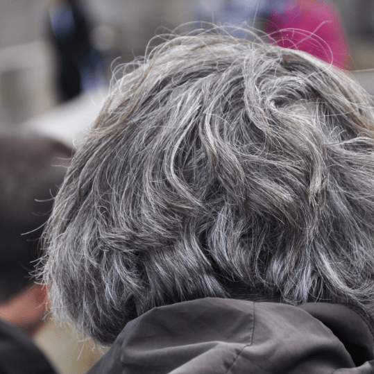 Gray Hair Linked to an Increased Risk of Heart Disease in Men