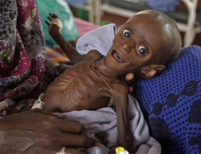 starvation-somalia