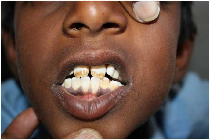 flurosis=dental