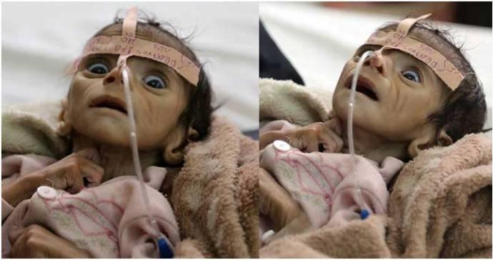 yemen-child