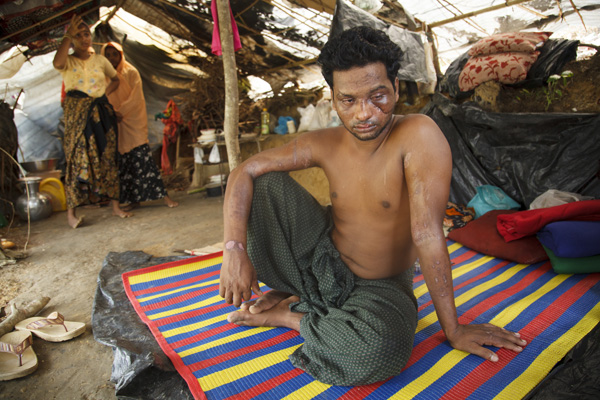 Rohingya Refugee injured by Burmese mob on the way to Bangladesh, at No-man's land in Bangladesh-Myanmar border, Bangladesh. Photo: © Abu Ala