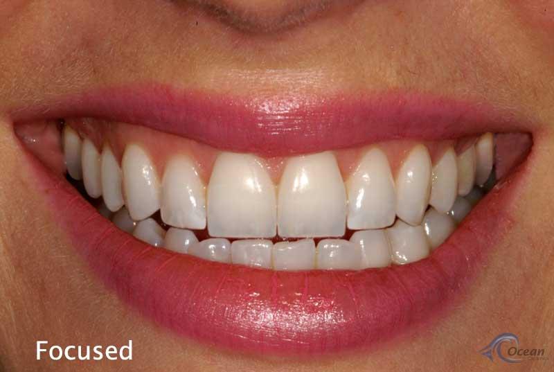 courtenay dental health courtenay teeth