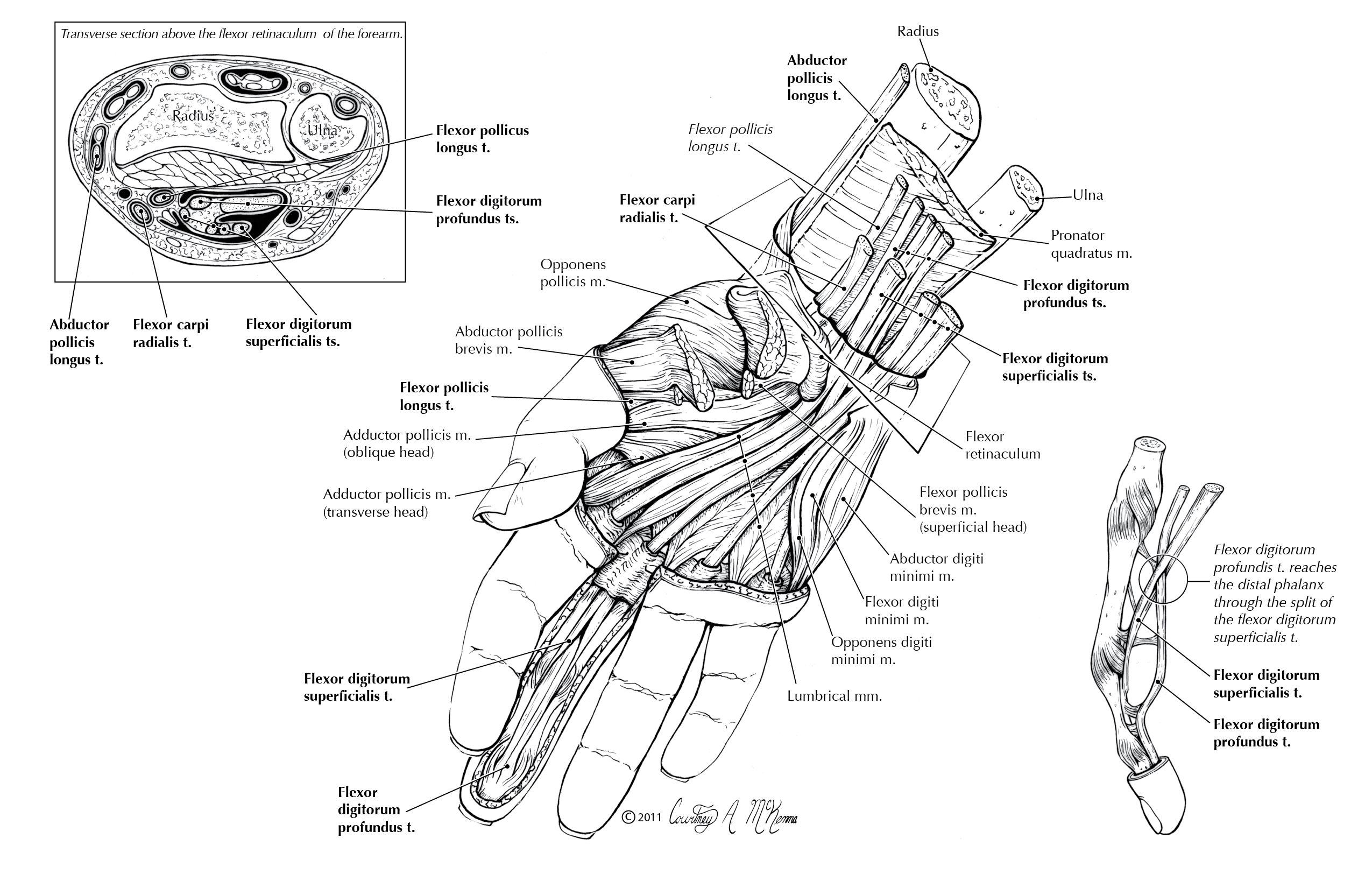 Flexor-Tendons-of-the-Hand-012