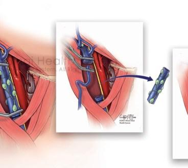 IJV-EJV Anastomosis