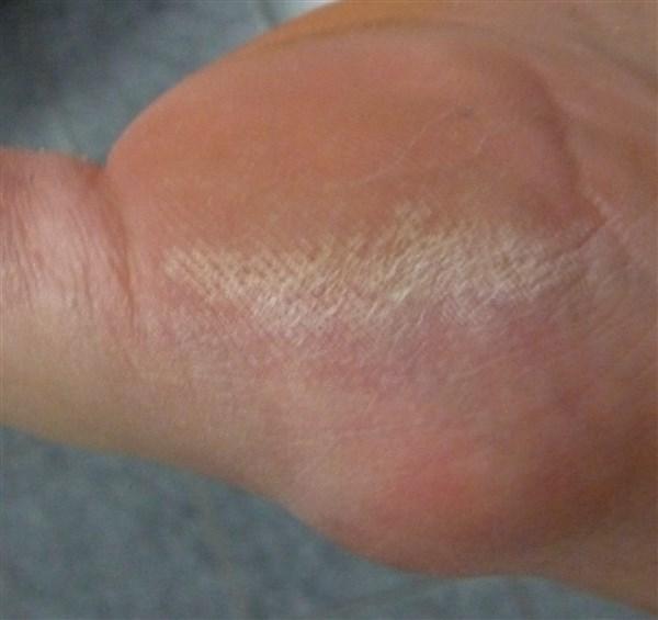 Avant : la plante de mes pieds sous mon gros orteil.