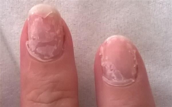 Le vernis-gel ressemble à ceci après la papilotte. Pour les vernis simples, généralement il ne reste plus rien sur l'ongle.