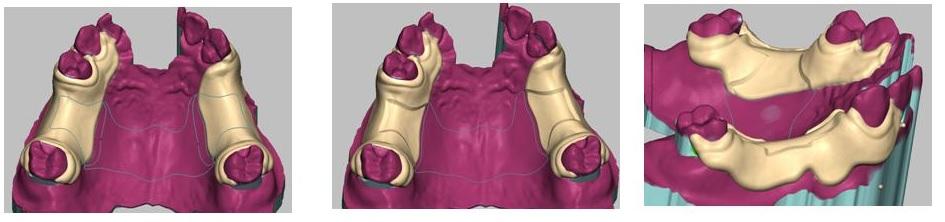 HP用3Dエステプレゼン画像3