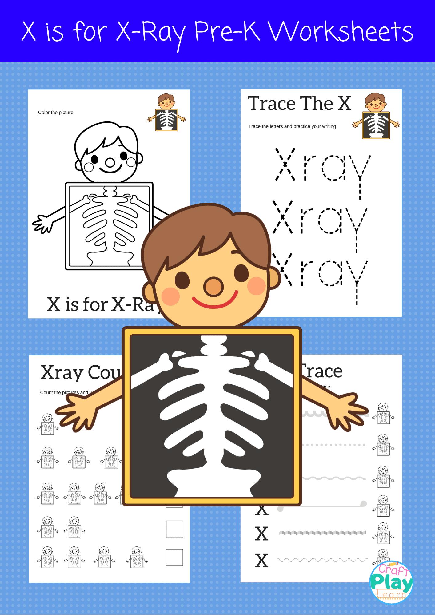 Letter X Worksheets For Preschool Kids