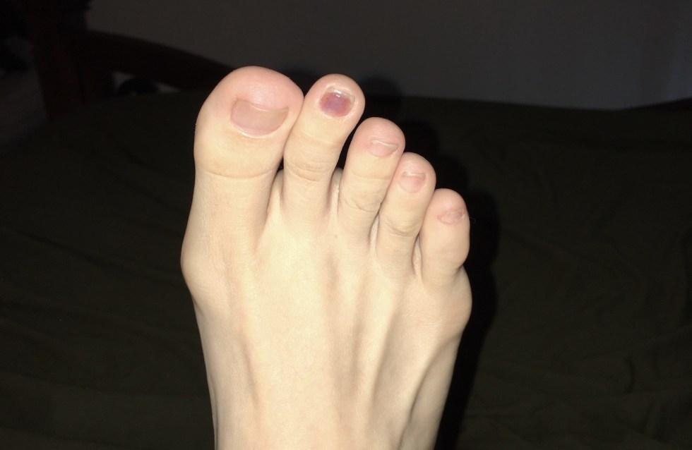 Health Effects of Running - Blood Under Toenail & Ingrown Nails