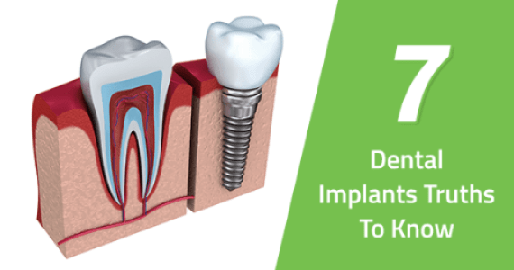 Dental Implant In Pune