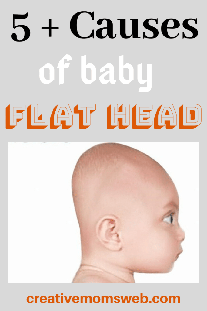 causes of baby flat head