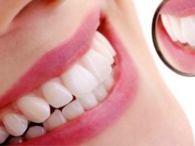 Καμπανάκι για τη λεύκανση των δοντιών