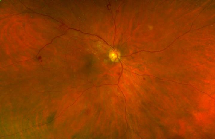 Aspect en photographie couleur d'une rétinopathie diabétique.