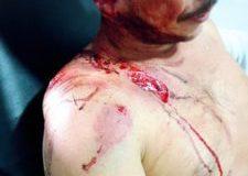 Policía atropelló a líderes campesinos del Putumayo