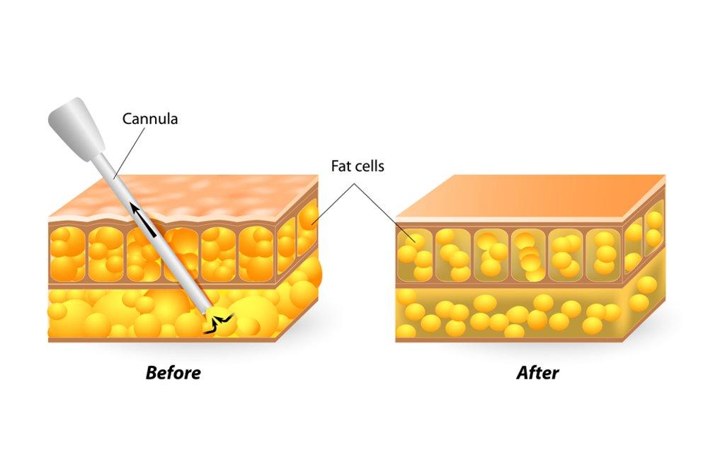 Cristal Beauty liposuzione torino