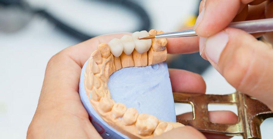 Multiple Dental Implant Fareham Hampshire - Crofton Dental Care