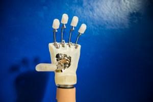 Mano bionica, prima donna italiana a portarla: il software nello zainetto