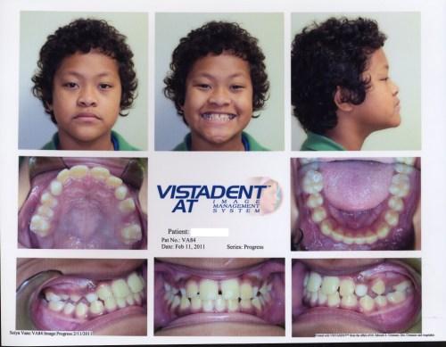 orthodontic treatment changes smiles