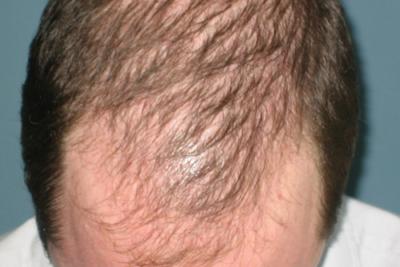 Thinning Hair Recipe