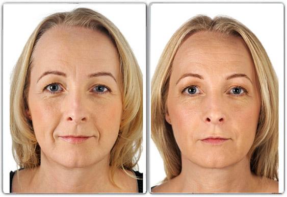 Pour chaque traitement proposé, des photos avant/après sont réalisées au cabinet afin d'assurer un suivi du traitement. Skinbooster Pour Revitaliser La Peau Du Visage Cshp