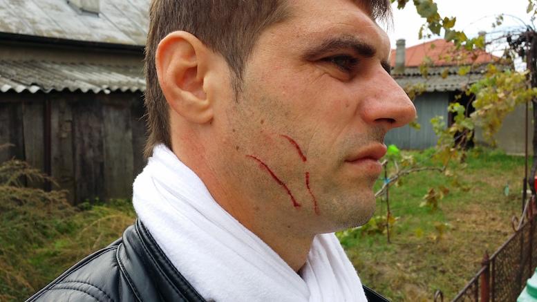 Alexandru Constantin, bărbatul bătut de un polițist din Tulcea