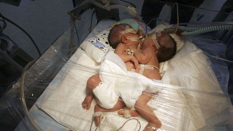 Siamezele împart același ficat. FOTO ARHIVA Foxnews