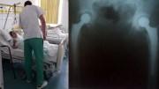 Operație reușită la Spitalul de Urgență Constanța