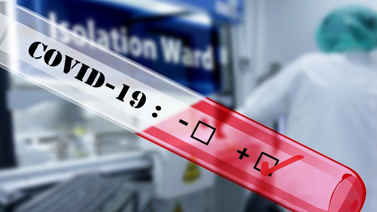 Test de Coronavirus. FOTO Pixabay